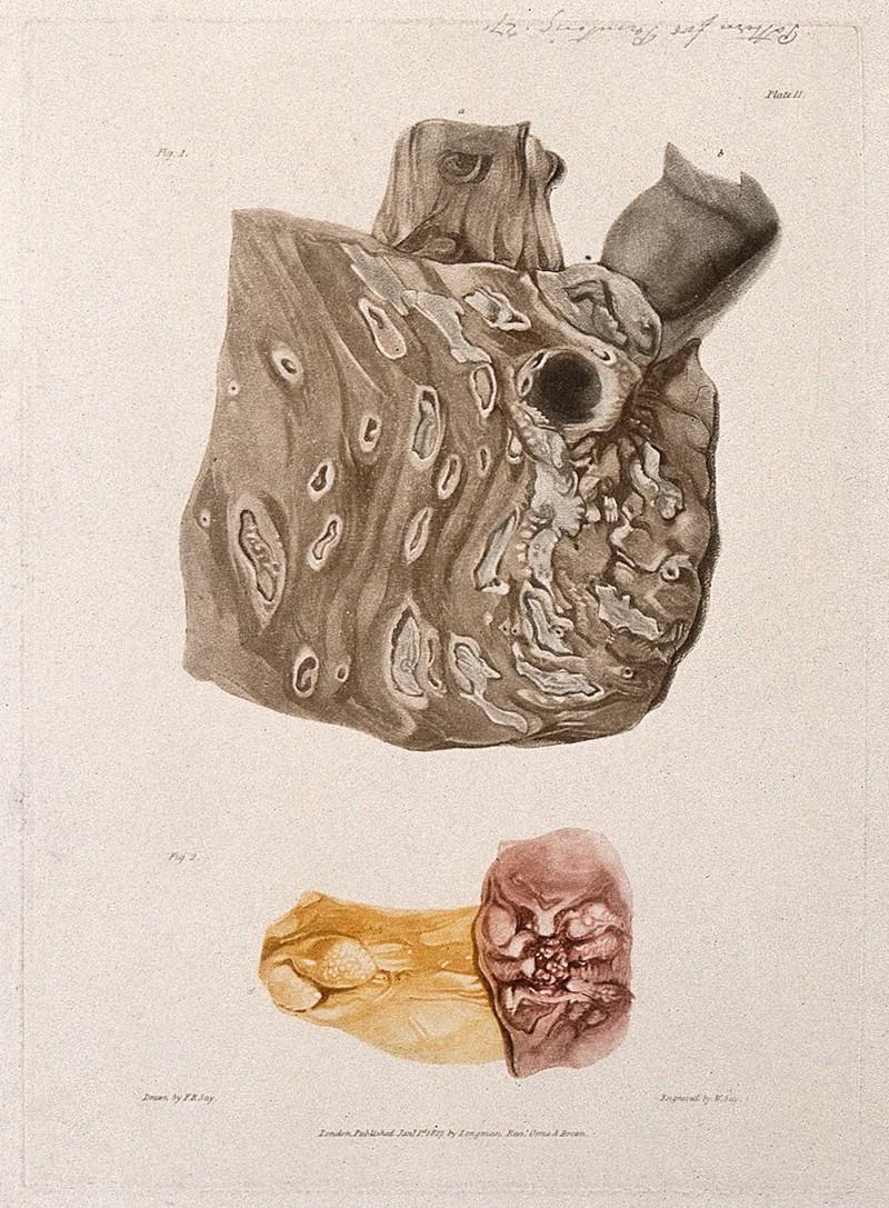 cancer images 2