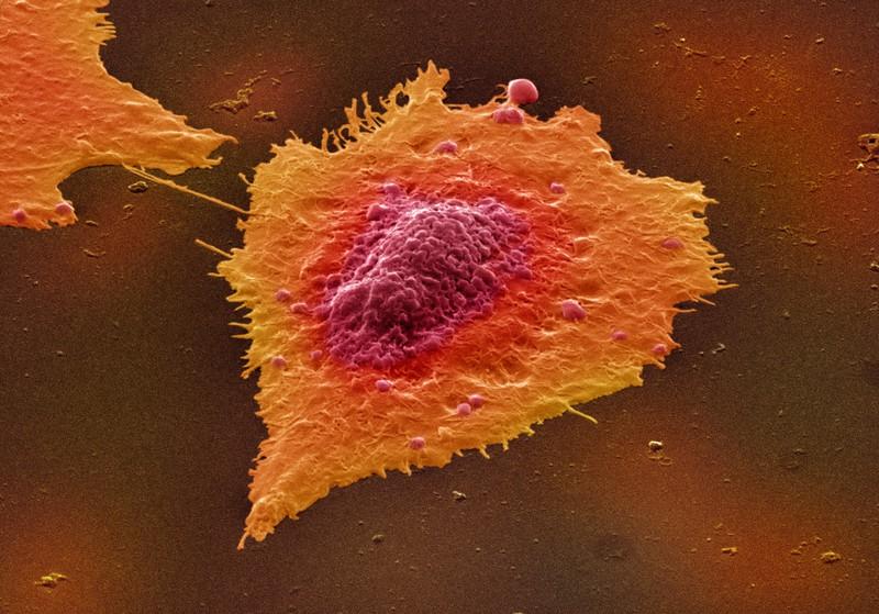 Cancer images 3